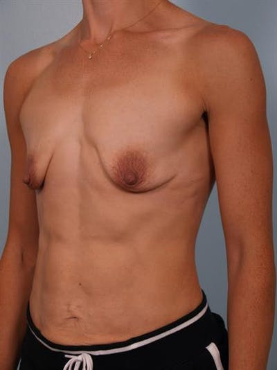 Breast Lift with Implants Gallery - Patient 1612705 - Image 1