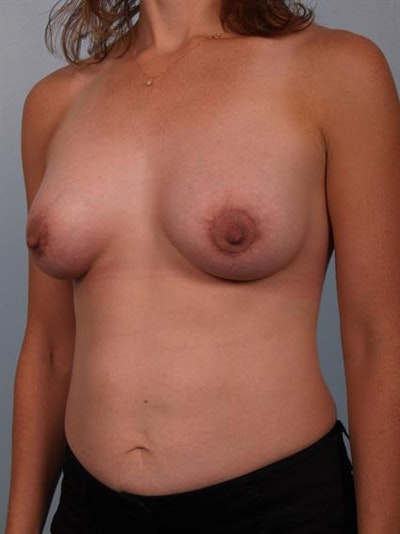 Breast Lift with Implants Gallery - Patient 1612705 - Image 2