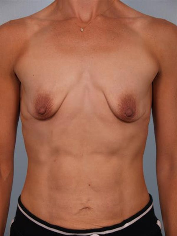 Breast Lift with Implants Gallery - Patient 1612705 - Image 3
