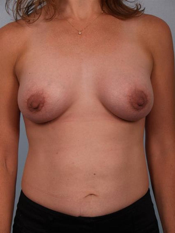Breast Lift with Implants Gallery - Patient 1612705 - Image 4