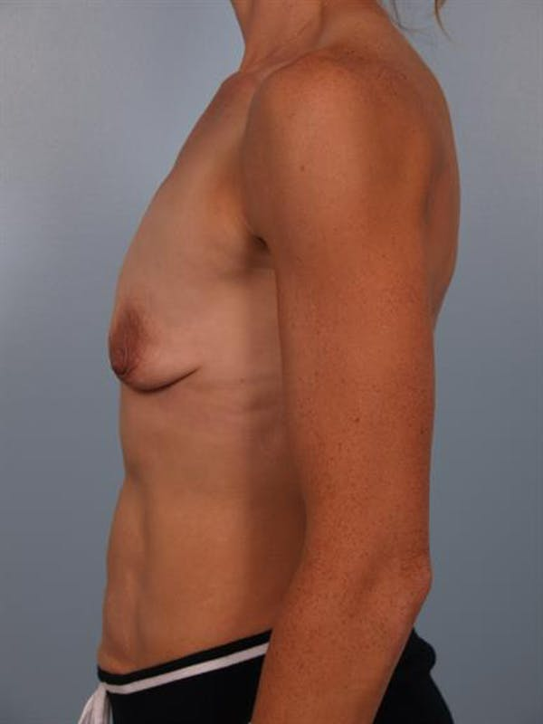 Breast Lift with Implants Gallery - Patient 1612705 - Image 5