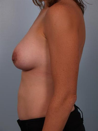 Breast Lift with Implants Gallery - Patient 1612705 - Image 6