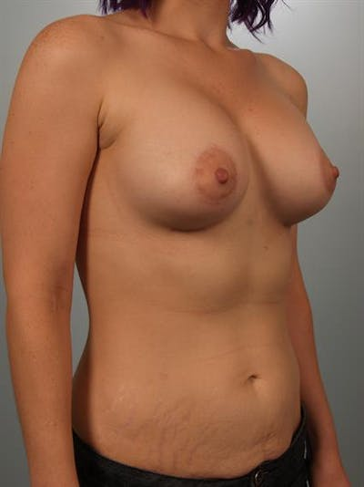 Breast Lift with Implants Gallery - Patient 1612706 - Image 4