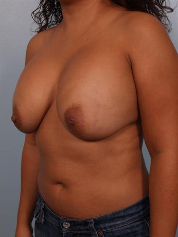 Breast Lift with Implants Gallery - Patient 1612707 - Image 3