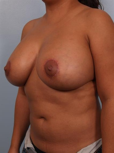 Breast Lift with Implants Gallery - Patient 1612707 - Image 4