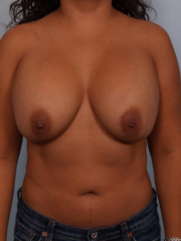 Breast Lift with Implants Gallery - Patient 1612707 - Image 5