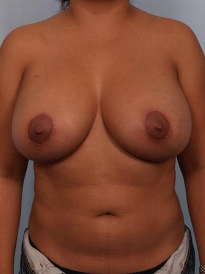 Breast Lift with Implants Gallery - Patient 1612707 - Image 6