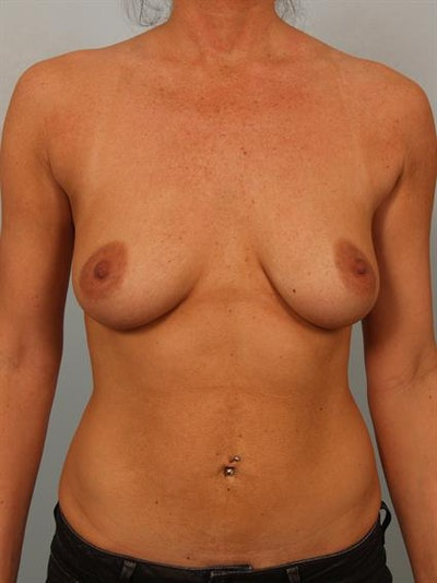 Breast Lift with Implants Gallery - Patient 1612708 - Image 1