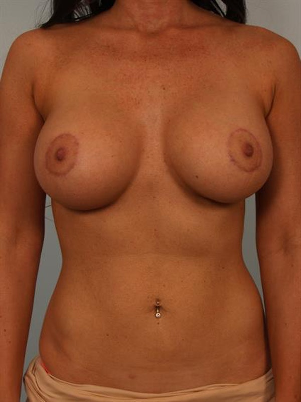 Breast Lift with Implants Gallery - Patient 1612708 - Image 2