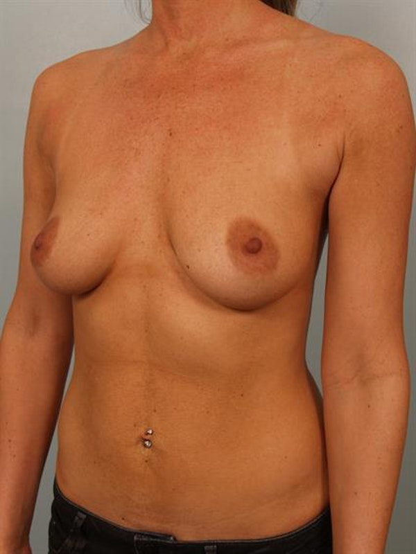 Breast Lift with Implants Gallery - Patient 1612708 - Image 3