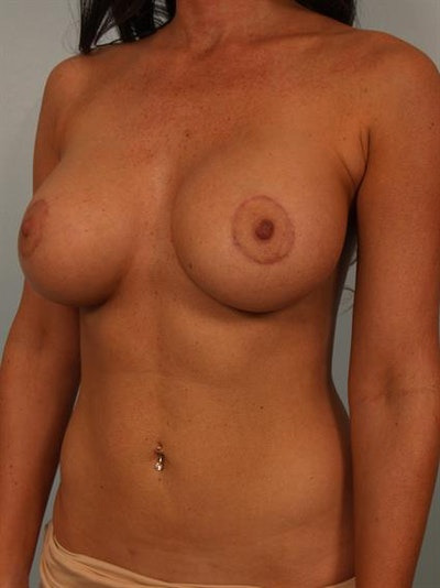 Breast Lift with Implants Gallery - Patient 1612708 - Image 4