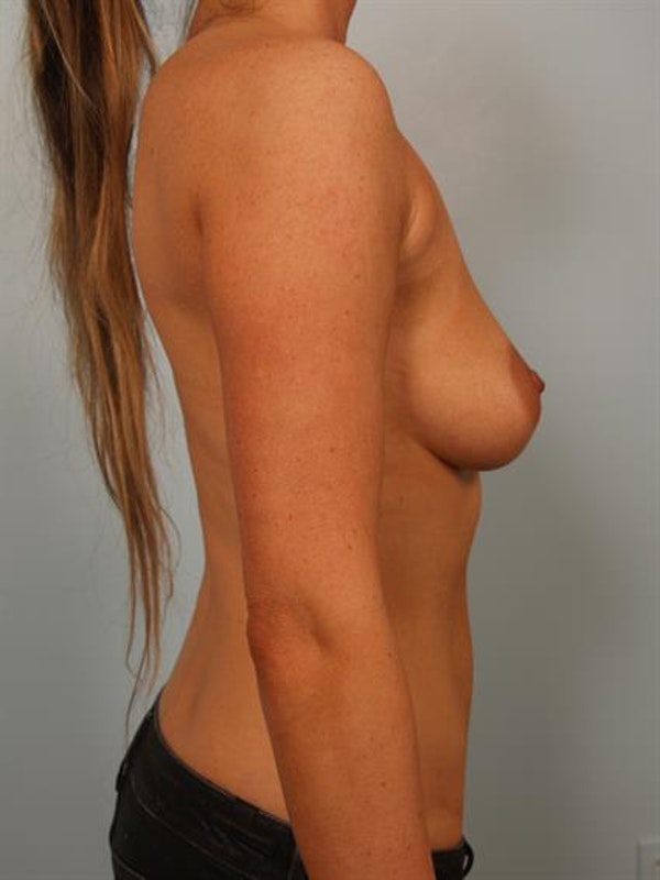 Breast Lift with Implants Gallery - Patient 1612708 - Image 5