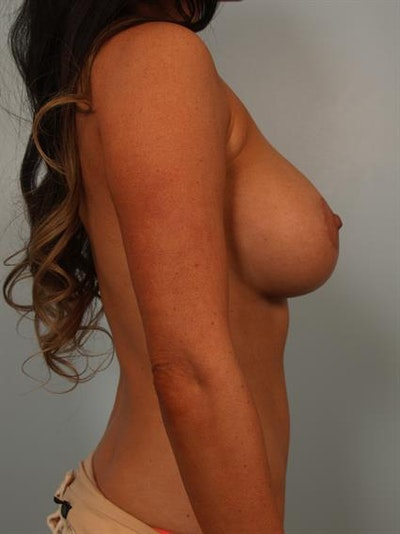 Breast Lift with Implants Gallery - Patient 1612708 - Image 6