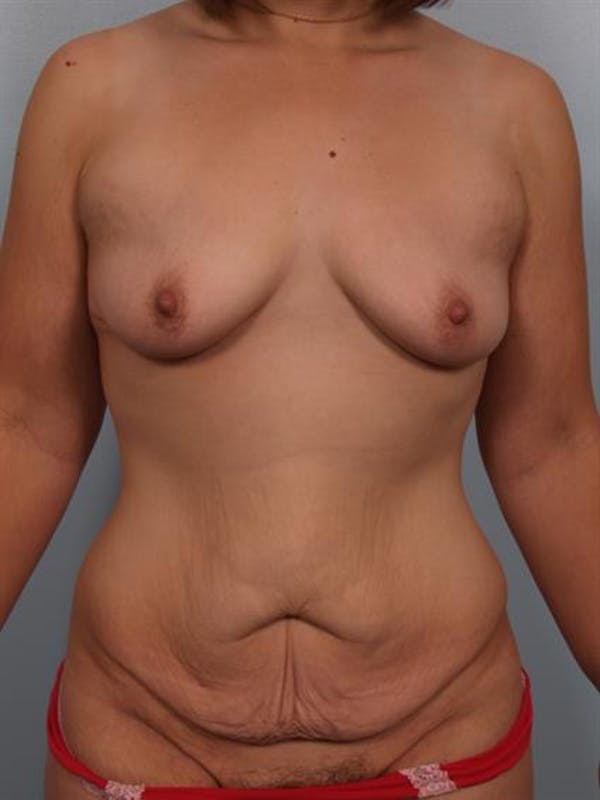 Breast Lift with Implants Gallery - Patient 1612710 - Image 1