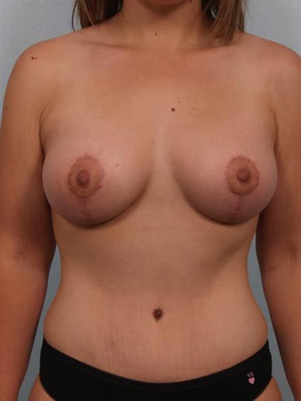 Breast Lift with Implants Gallery - Patient 1612710 - Image 2