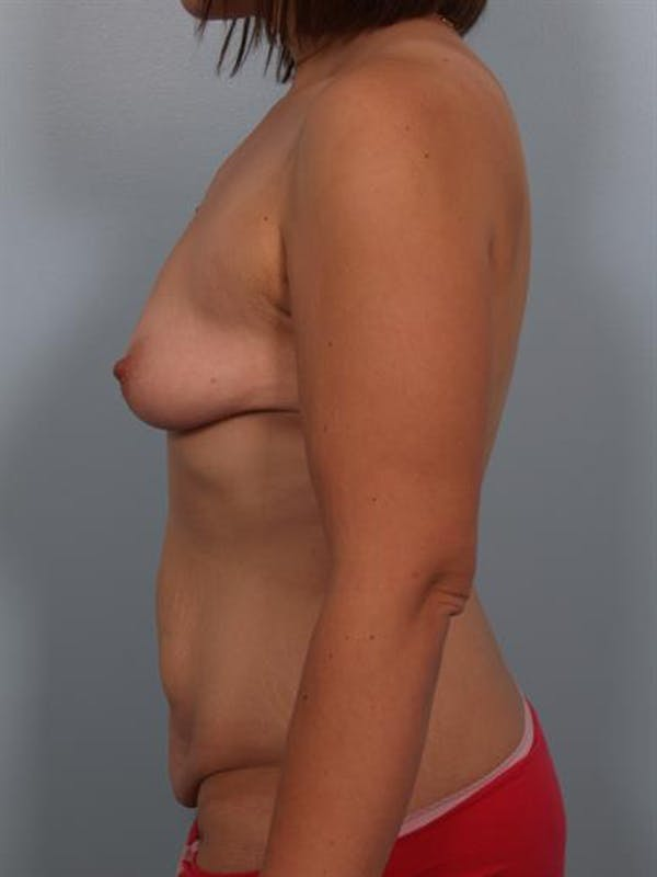 Breast Lift with Implants Gallery - Patient 1612710 - Image 3