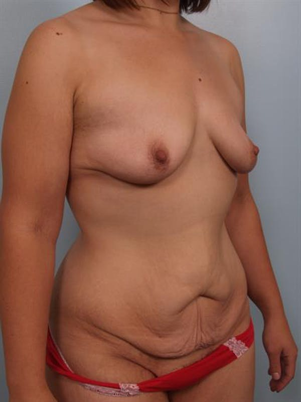 Breast Lift with Implants Gallery - Patient 1612710 - Image 5