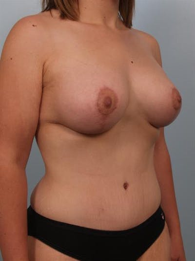 Breast Lift with Implants Gallery - Patient 1612710 - Image 6