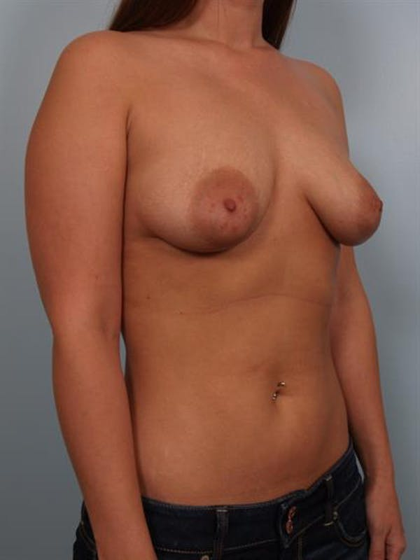 Breast Lift with Implants Gallery - Patient 1612711 - Image 3