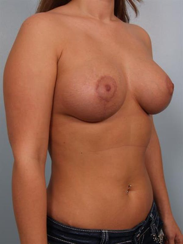 Breast Lift with Implants Gallery - Patient 1612711 - Image 4