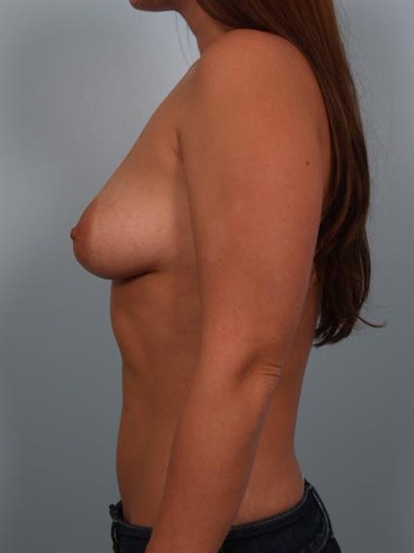 Breast Lift with Implants Gallery - Patient 1612711 - Image 5