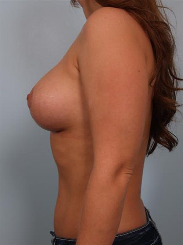 Breast Lift with Implants Gallery - Patient 1612711 - Image 6