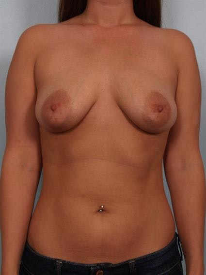 Breast Lift with Implants Gallery - Patient 1612711 - Image 1
