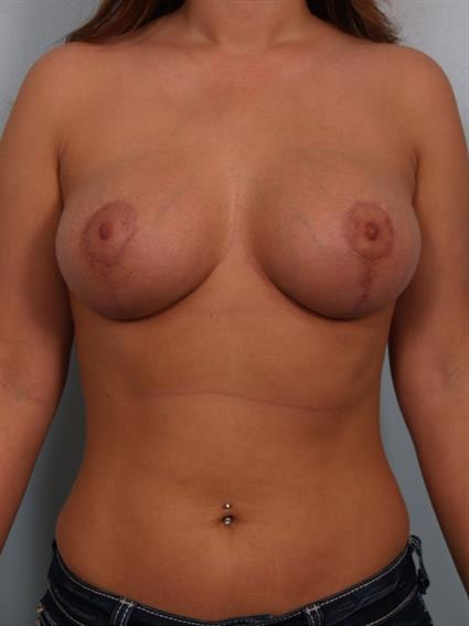 Breast Lift with Implants Gallery - Patient 1612711 - Image 2