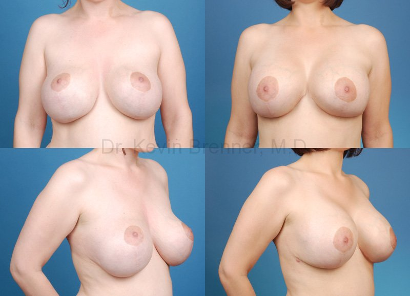 Breast revision in Beverly Hills before and after photo