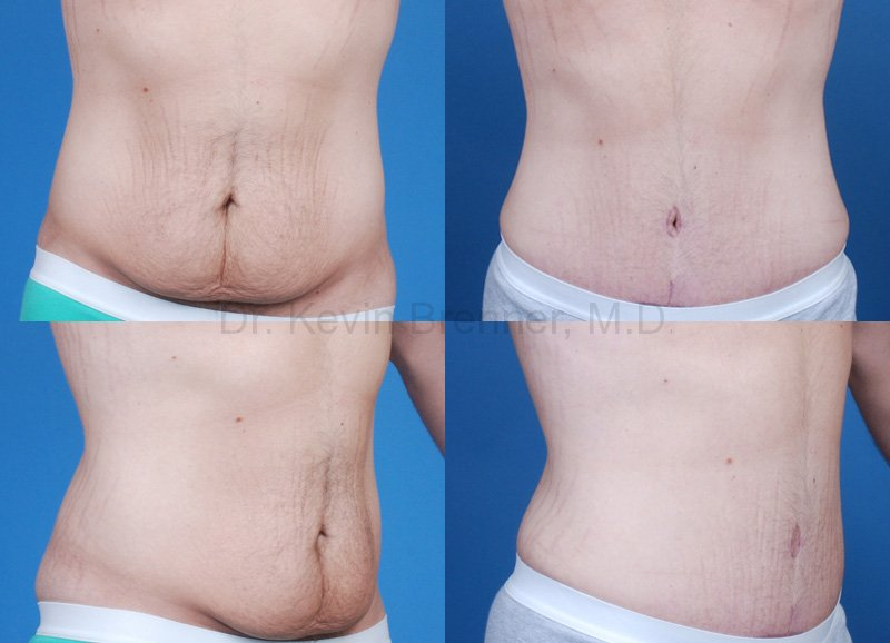 post bariatric tummy tuck