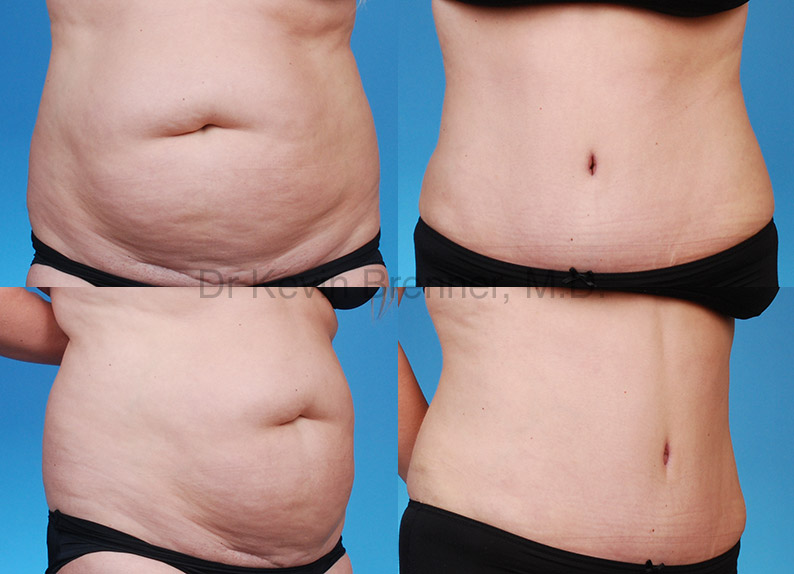 tummy tuck results after weight loss