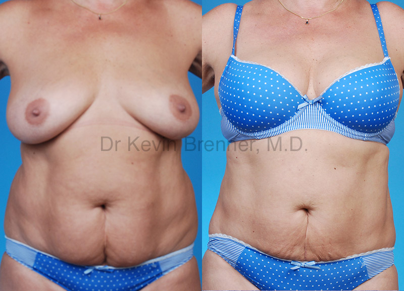 liposuction patient results