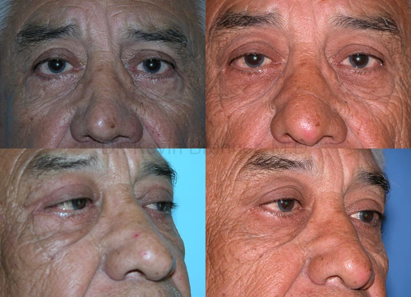 eyelid surgery patient before and after