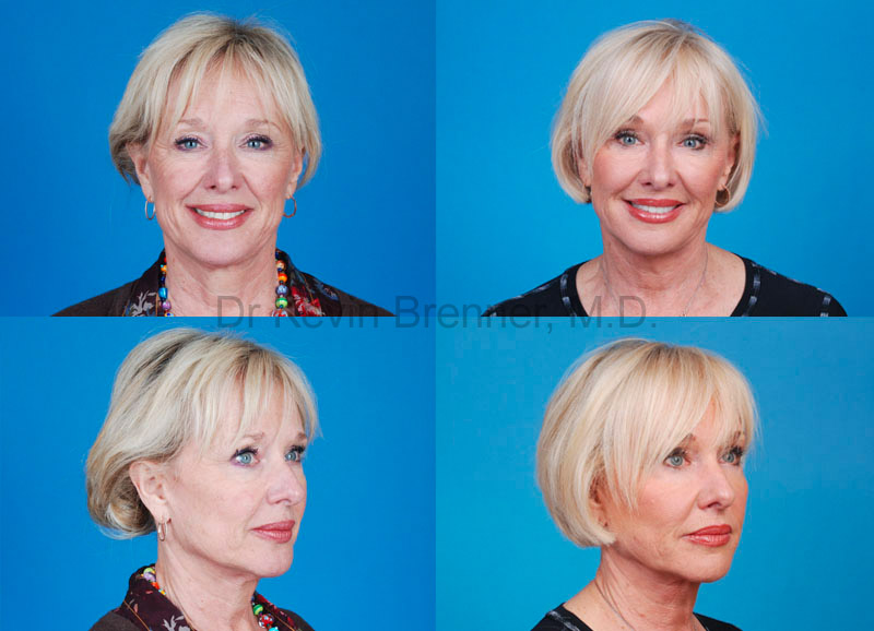 mini facelift patient in Beverly Hills