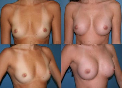 Breast Augmentation Gallery - Patient 1482261 - Image 1