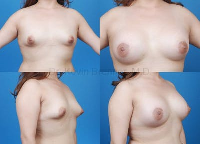 Breast augmentation before and after 1
