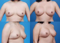 Breast Augmentation Gallery - Patient 1482264 - Image 1