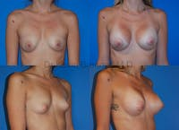 Breast Augmentation Gallery - Patient 1482265 - Image 1