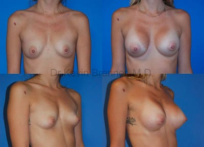Breast Augmentation Gallery - Patient 1482265 - Image 5
