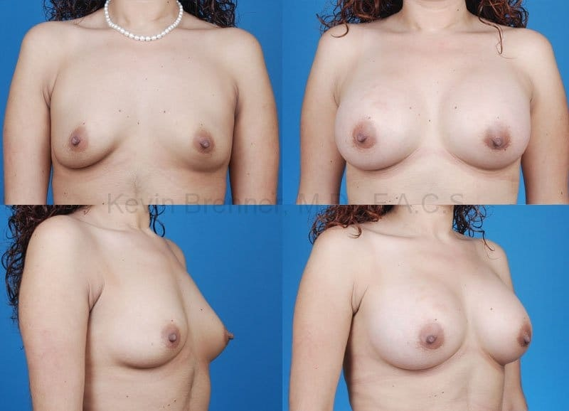Breast Augmentation Gallery - Patient 1482266 - Image 1
