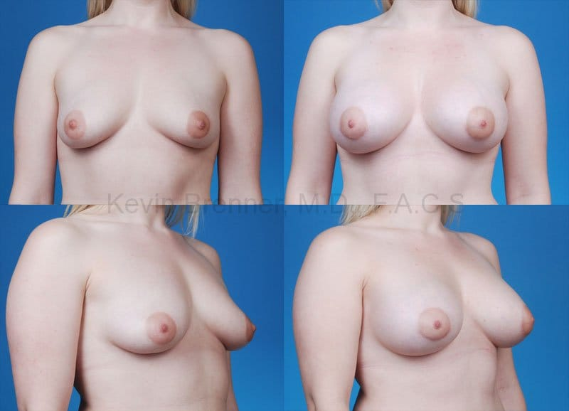 Breast Augmentation Gallery - Patient 1482267 - Image 1