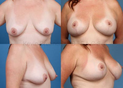 Breast Augmentation Gallery - Patient 1482269 - Image 9