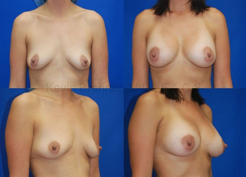 Breast Augmentation Gallery - Patient 1482270 - Image 1