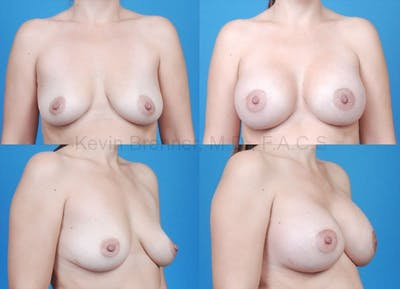Breast Augmentation Gallery - Patient 1482271 - Image 11