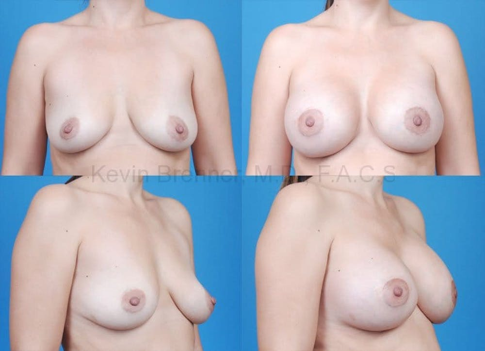 Breast Augmentation Gallery - Patient 1482271 - Image 1