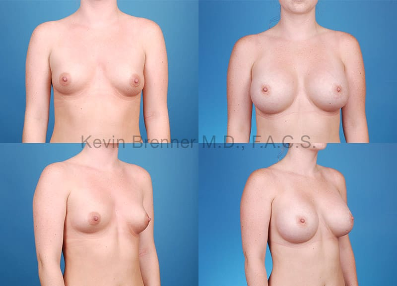 Before and after of a Breast Augmentation in Beverly Hills