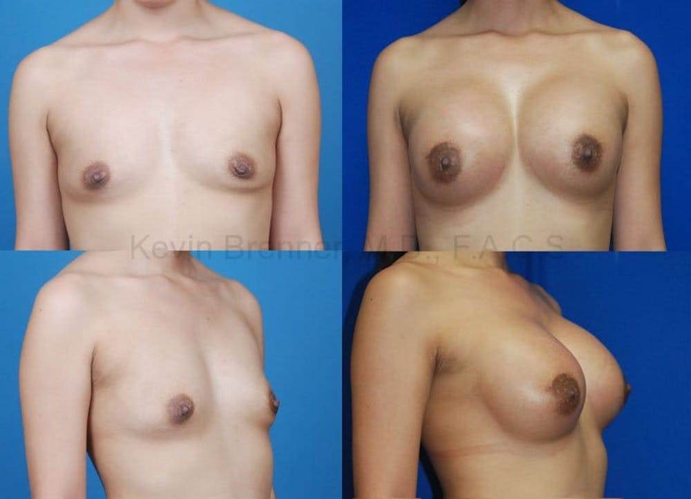 Breast Augmentation Gallery - Patient 1482273 - Image 1