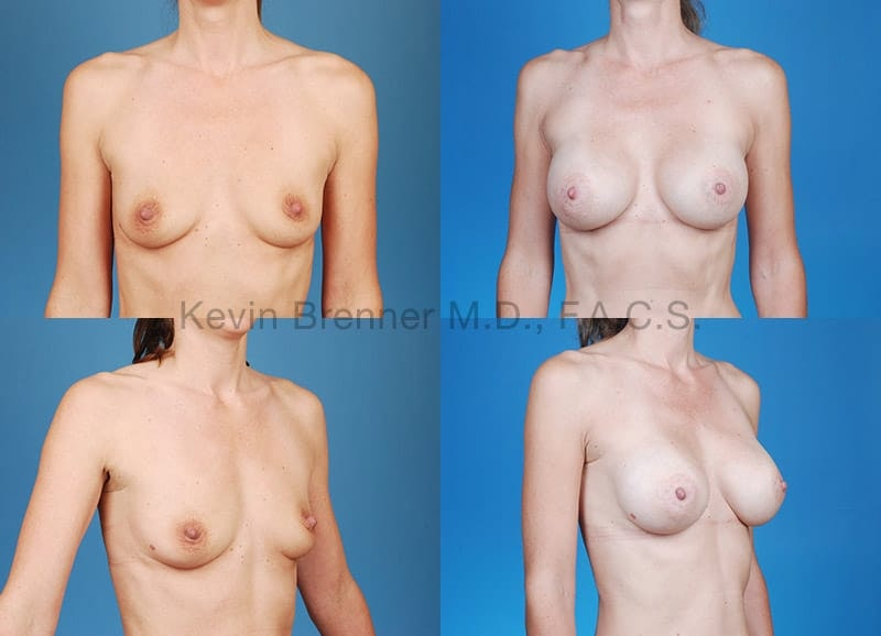 Breast Augmentation Gallery - Patient 1482275 - Image 1