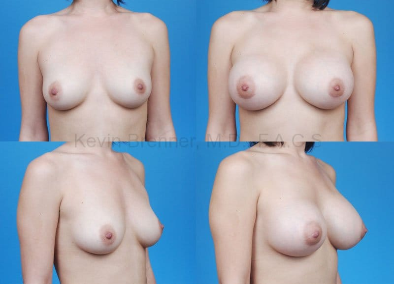 Breast Augmentation Gallery - Patient 1482276 - Image 1