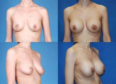 Breast Augmentation Gallery - Patient 1482277 - Image 17